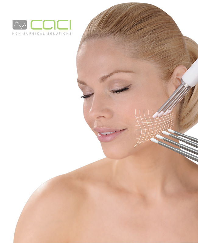 CACI treatments essex